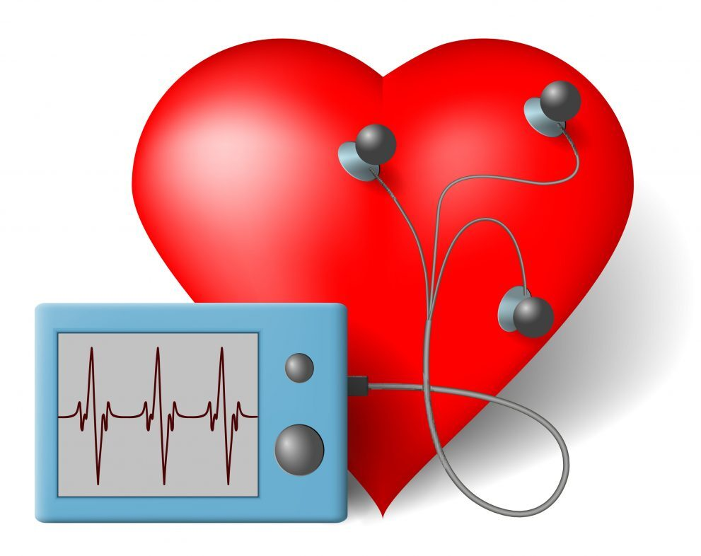 HOLTER- 24 satni EKG
