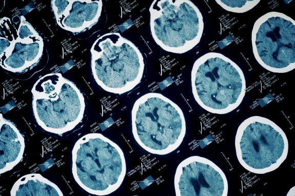 tjedan mozga